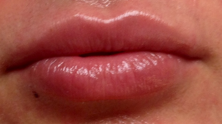 Great Lips after Evervel lip filler