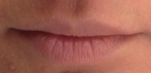 Wrinkled lips thin upper lip
